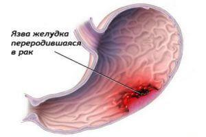 Виразка шлунка у любителів палити в затяжку