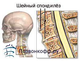 Що ви зобов`язані знати про спондильоз шийного відділу?