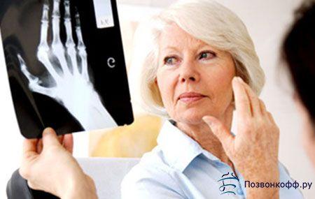 Ефективне лікування артриту пальців рук від простого до складного