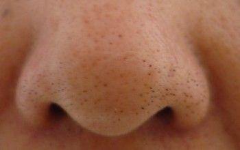 Забиті пори на носі