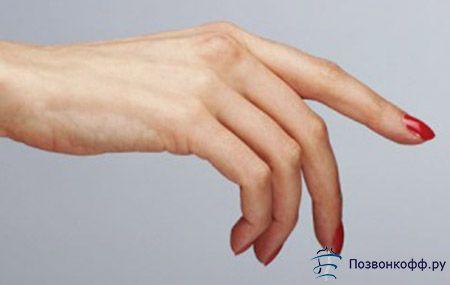 Як врятувати себе при артриті пальців рук?