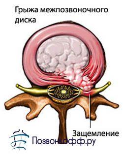Як дізнатися чи є у вас симптоми грижі міжхребцевого диска?