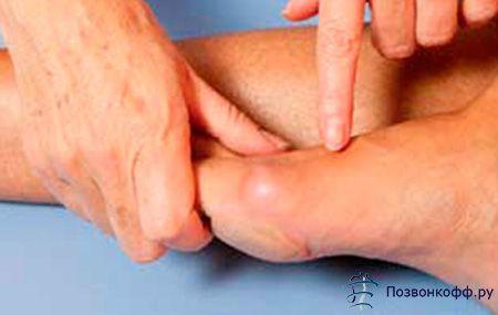 Як вилікуватися від артриту стопи і не думати про рецидиви?