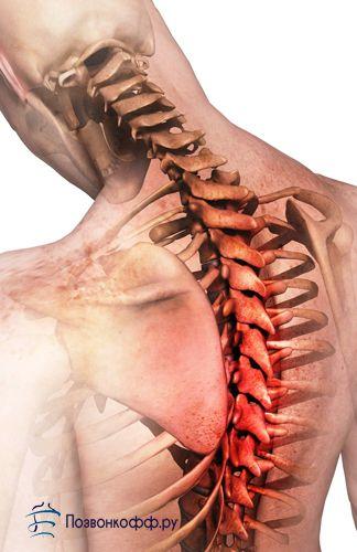 Які комплекси лікувальної фізкультури допоможуть при грудному остеохондрозі?