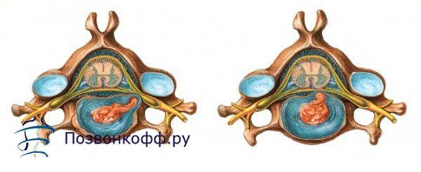 Яке лікування протрузії міжхребцевого диска реально допомагає?