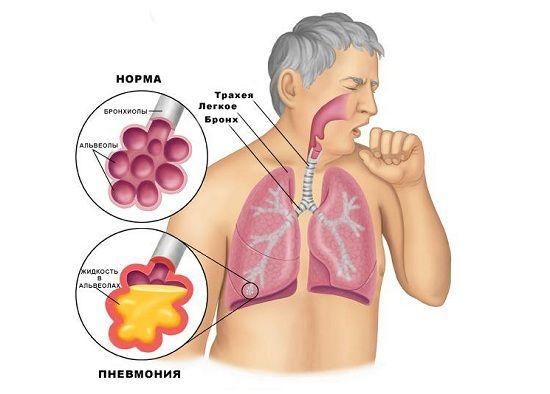 схема хвороби