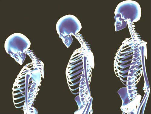 Компресійний перелом хребта: симптоми і діагностика