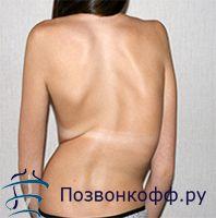 Консервативні варіанти лікування сколіозу 3 ступеня гімнастикою, лфк, вправами