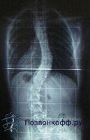 Коротко про симптоми і варіанти лікування сколіозу поперекового відділу хребта