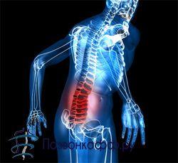 Мікродискектомія при грижі поперекового відділу хребта, що потрібно знати?