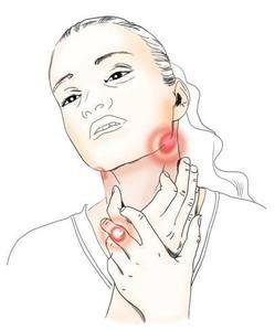 Найбільш відповідні ліки від болю в горлі
