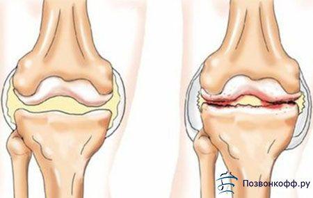 Не пропустіть можливість зупинити розвиток остеоартрозу першого ступеня!