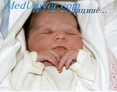 ГРВІ у 2 місячної дитини лікування