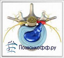 Чому розвивається хребетна грижа?