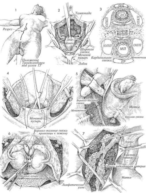 Радикальна гістеректомія по wertheim з двостороннім видаленням тазових лімфатіческіхузлов і подовженням піхви
