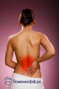 Найефективніші вправи і лфк проти поперекового остеохондрозу