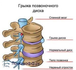 Симптоми і лікування грижі диска l5-s1. Як перемогти головного ворога вашого хребта?