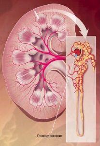 ураження нирки при гломерулонефриті