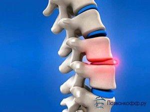 У вас виявили грижу шморля в грудному відділі хребта?