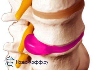 Дізнайтеся все про симптоми і лікування міжхребцевої грижі крижового відділу!