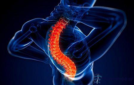 Всі нюанси остеоартрозу хребта від а до я