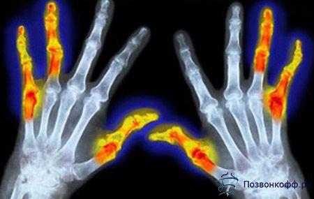 Все, що повинен знати пацієнт про патогенез і ознаках ревматоїдного артриту