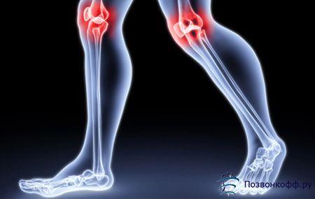Вилікувати запалення колінного суглоба повністю: місія здійсненна!
