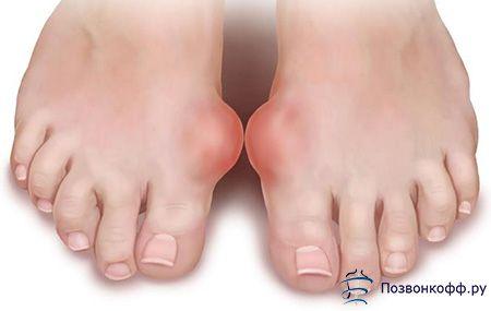 Тут ви дізнаєтеся, як позбутися від артриту суглобів стопи!